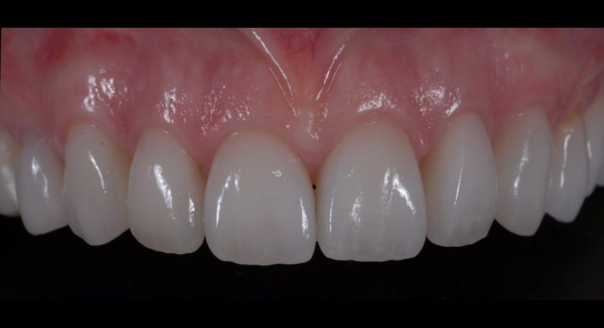 affordable dental veneers